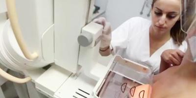 Диагностика и лечение рака груди в Израиле